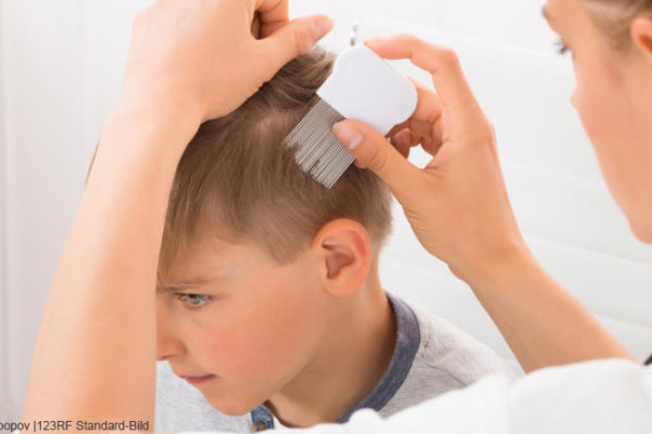Was bei Kopfläusen zu tun ist