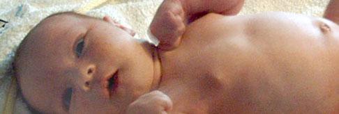 Wie Sie den Bauchnabel Ihres Babys pflegen