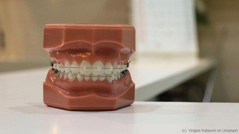 Welche Zahnspange sich wann eignet