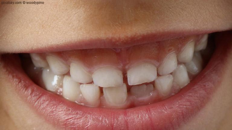 Wie können Eltern damit umgehen, wenn ihr Nachwuchs Angst vor der zahnmedizinischen Untersuchung hat?